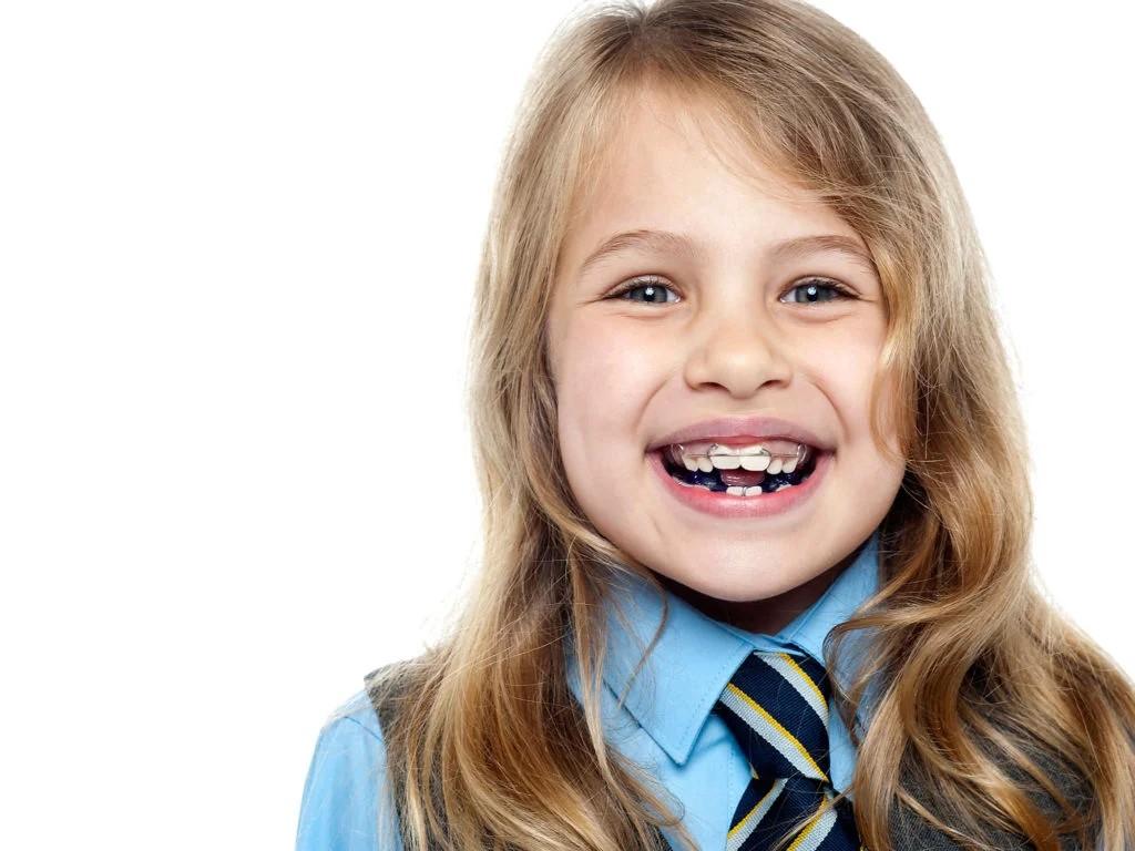 Common orthodontic problems 3