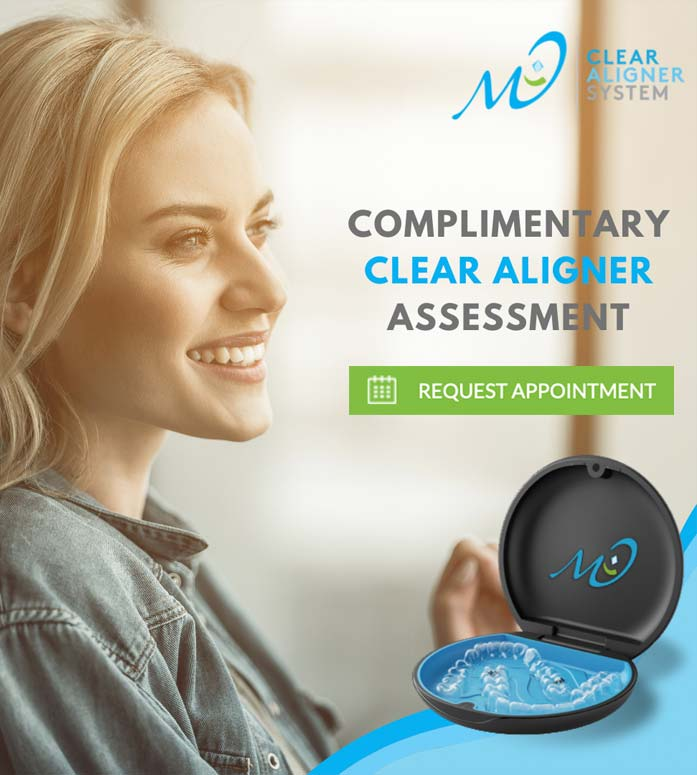 clear aligner mo