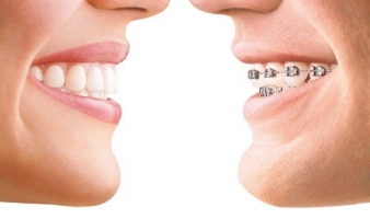 MY TEEN DOESN'T WANT BRACES… WHAT ARE THE ALTERNATIVES?