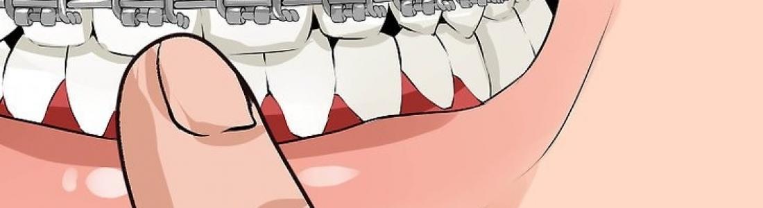 Help! My braces are broken.
