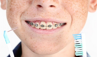 Brushing With Braces – A Five Star Routine