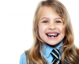 Common orthodontic problems in children