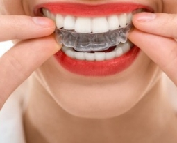 "THE RISKS OF ""DIY"" BRACES"
