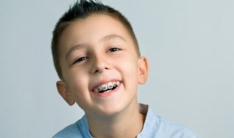 IS THERE A BENEFIT TO EARLY ORTHODONTIC TREATMENT?