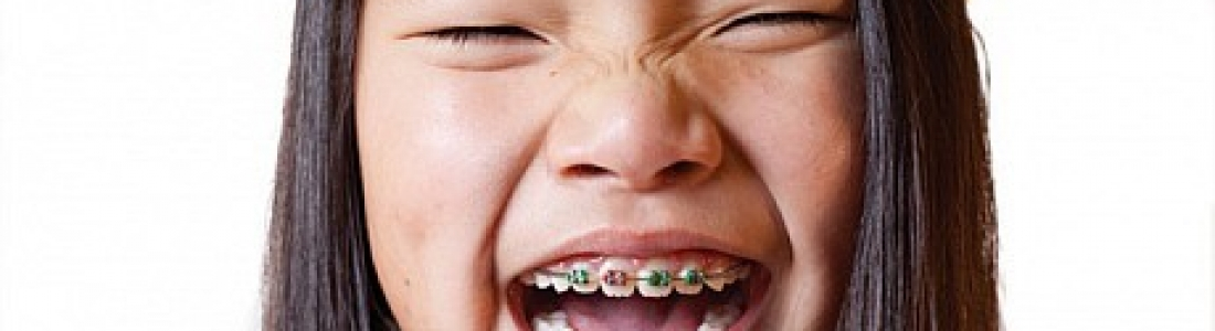STIGMA AROUND BRACES A THING OF THE PAST