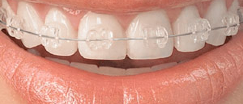 What are Ceramic Braces ?
