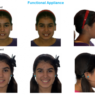 jaw correction functional appliance jaw surgery