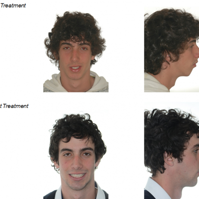 jaw surgery before and after facial surgery