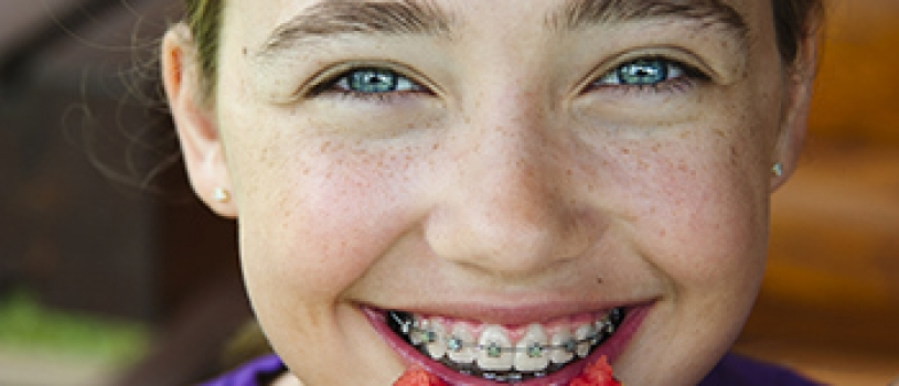 HOW TO PREVENT BROKEN BRACES