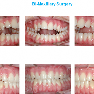 open bite correction improving your smile